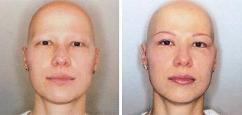 Alopecia areata totalis